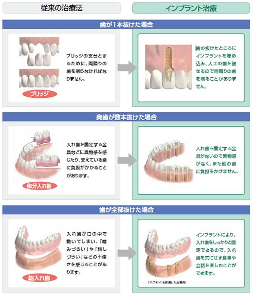 implant_hikaku